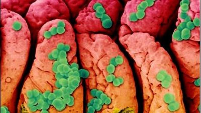 Bakteri Staphylococcus aureus