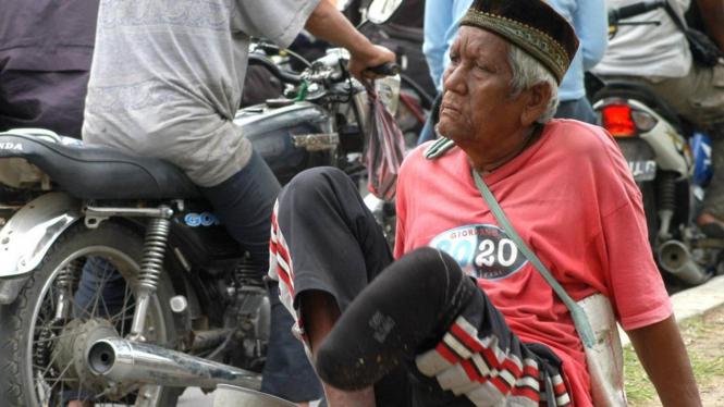 Penderita kusta mengemis di jalanan Banda Aceh
