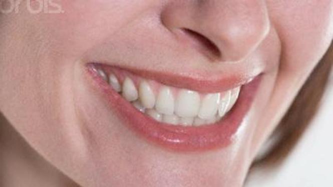 Gigi Putih *SALAH*