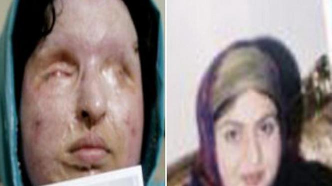 Wajah Ameneh Bahrami sebelum dan sesudah disiram cairan asam
