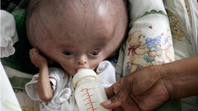 Muhammad Toriq, bayi penderita hydrochepalus