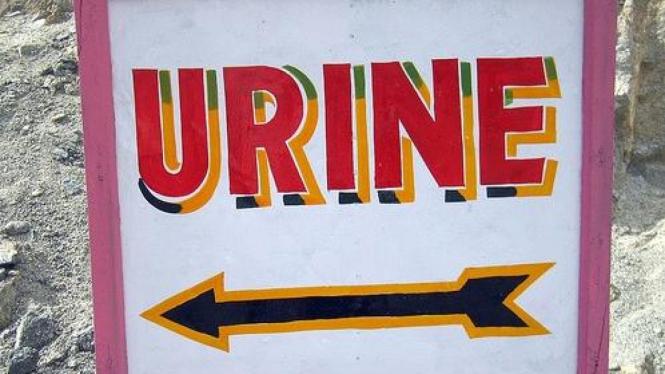 Ilustrasi urine