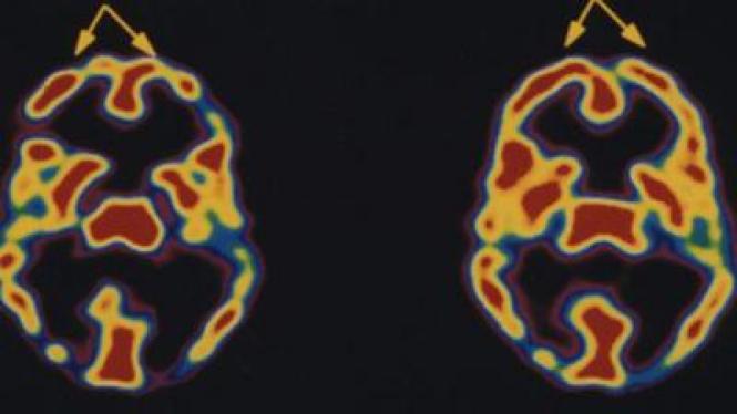 Perbandingan hasil scan otak orang yang bermeditasi (kanan) dan tidak (kiri)
