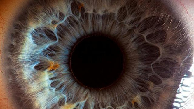 Mata manusia tampak seperti kawah.