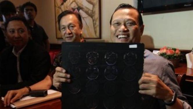 Adang Daradjatun memperlihatkan hasil rontgen kepala istrinya Nunun