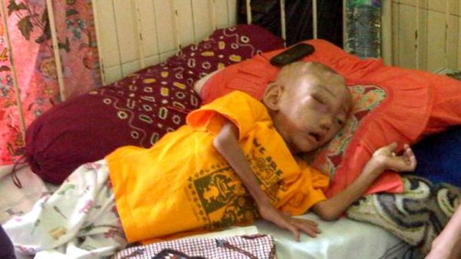 Kondisi Arya Mahardika Ahmad saat ini, mengidap Willms Tumor Akut