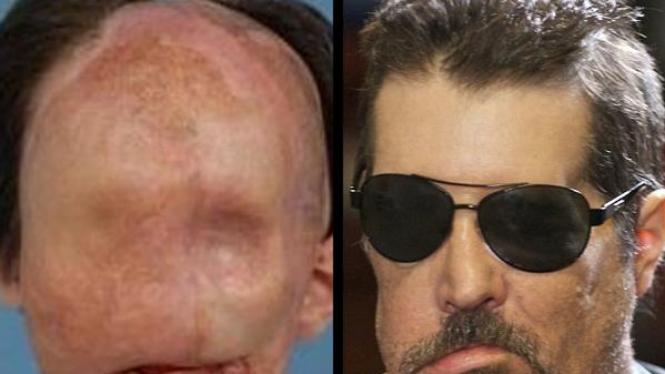 transplantasi wajah Dallas Weins