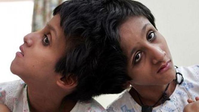 Saba dan Farah, dua gadis kembar siam di India.