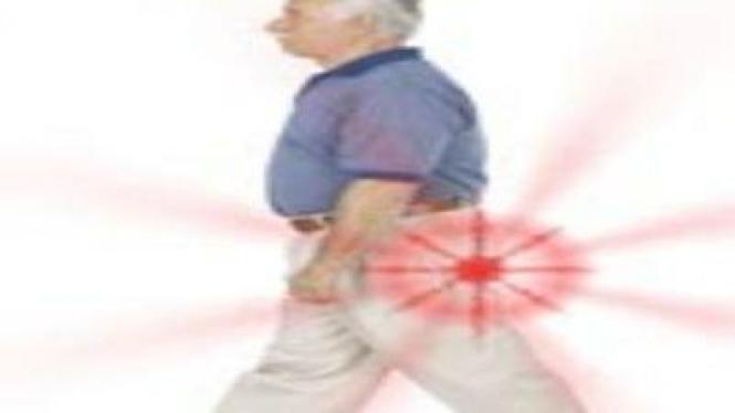 Sindrom Nyeri Bokong