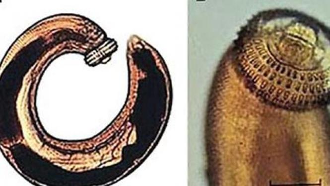 Cacing bergigi, gnathostomiasis.