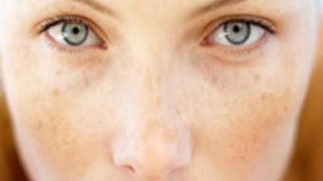 Ilustrasi flek hitam di wajah.