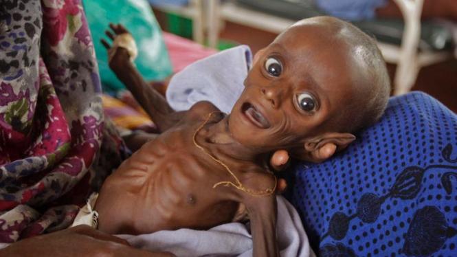 Bayi-bayi Somalia