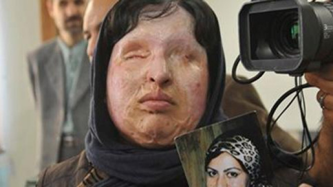 Ameneh Bahrami memegang fotonya sebelum disiram asam.