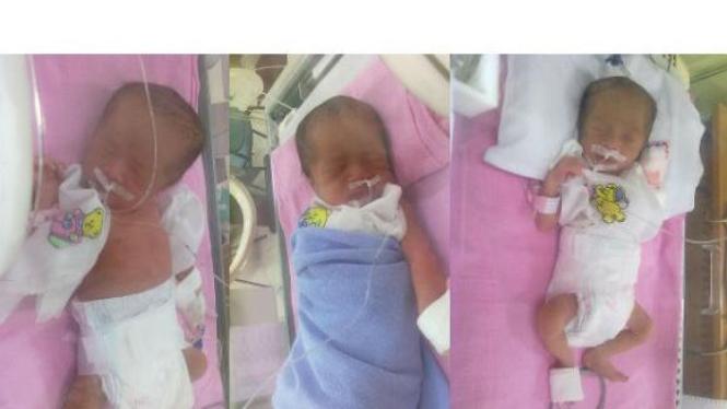 Bayi kembar tiga Adeela Arlyana, Adeena Rilyana, dan Adeefa Lilyana Watary
