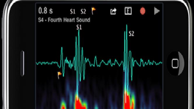 Aplikasi Kesehatan Pada Smartphone