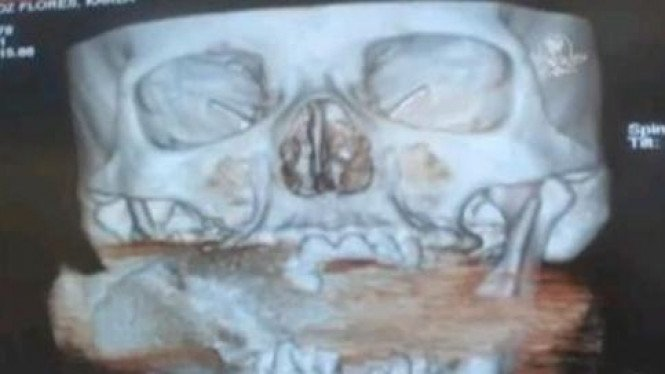 Hasil X-Ray Karla Flores. Terlihat granat di rahangnya.