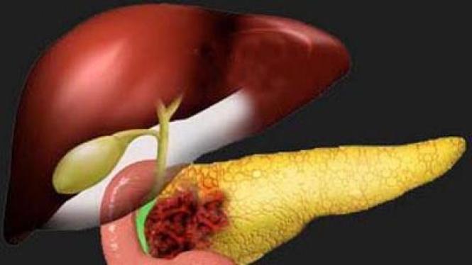 ilustrasi kanker pankreas