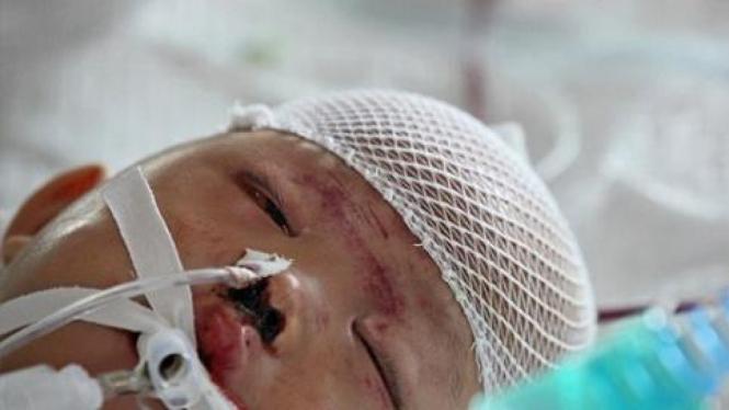 Yueyue, bocah korban tabrak lari di China