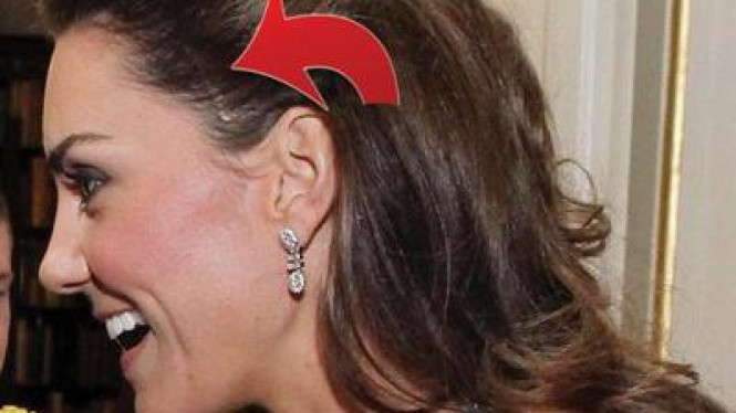 Kate Middleton terluka