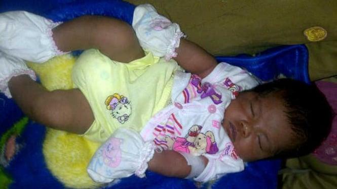 Rehan, bayi air mata darah