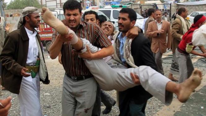 Korban bentrokan di Sanaa, Yaman, 24 November 2011