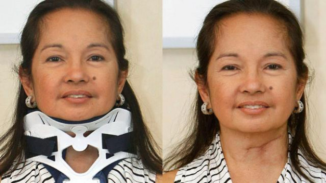 mantan presiden filipina gloria macapagal arroyo