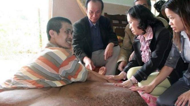 Nguyen Dun Hai yang idap tumor di kaki seberat 90kg