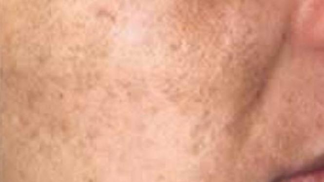 Flek hitam pada wajah