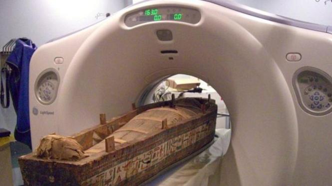 Pemindaian mumi dengan Ct scan
