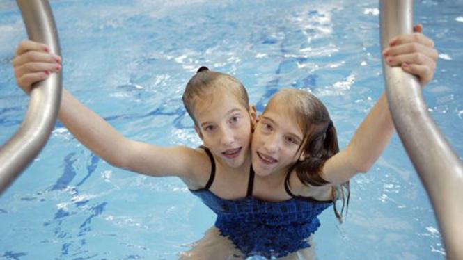 Pasangan kembar siam Abigail dan Brittany Hensel