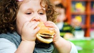 Ilustrasi anak obesitas.