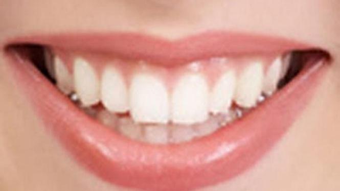 Tips Mencegah Agar Gigi Tidak Kuning Viva
