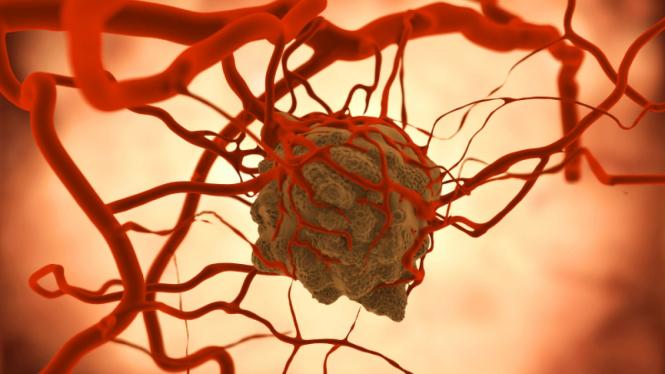 Ilustrasi tumor