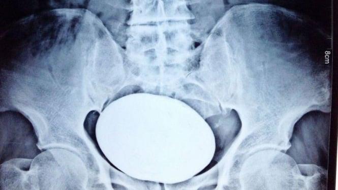 Hasil X-Ray Batu Ginjal