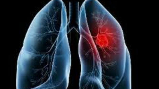 Ini Jenis Kanker Paru yang Paling Banyak Menyerang Perokok