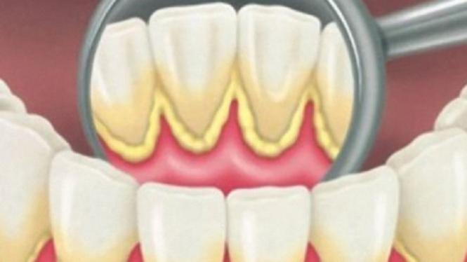 Empat Kebiasaan Penyebab Karang Gigi Membandel – VIVA 685e008b59