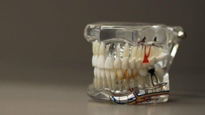 Ini Waktu Yang Tepat Untuk Bersihkan Karang Gigi Viva