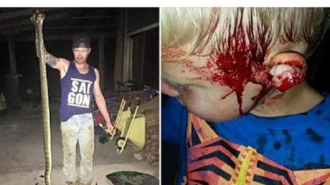 Anak bersimbah darah dan piton yang mati.