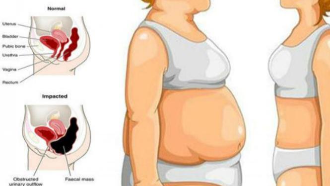 Lima Langkah Turunkan Berat Badan Dalam Seminggu