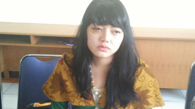 Dita Aditia Ismawati (27), korban penganiayaan anggota DPR Masinton Pasaribu