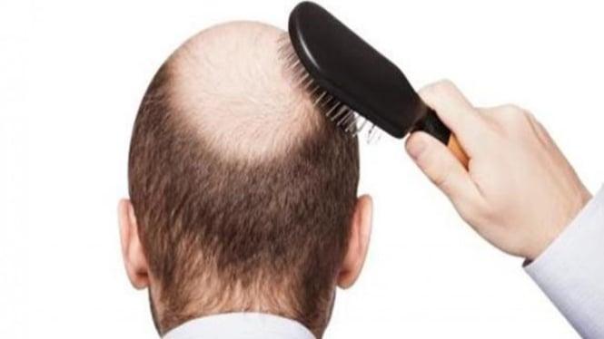 Rambut botak.