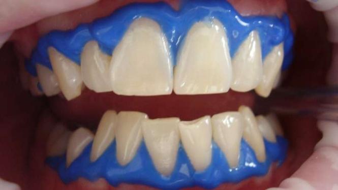 Ilustrasi whitening gigi, gigi, perawatan gigi dan mulut.