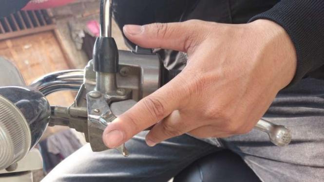 Rem tangan sepeda motor.