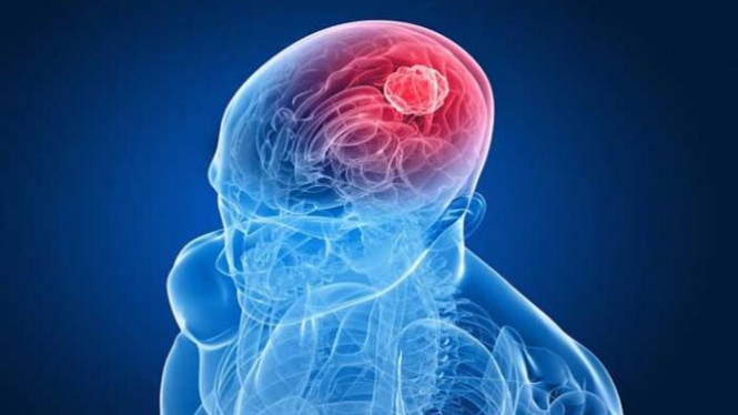 3 Cara Pengobatan Kanker Otak
