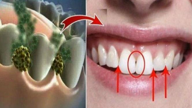 Bakteri penyebab bau mulut.