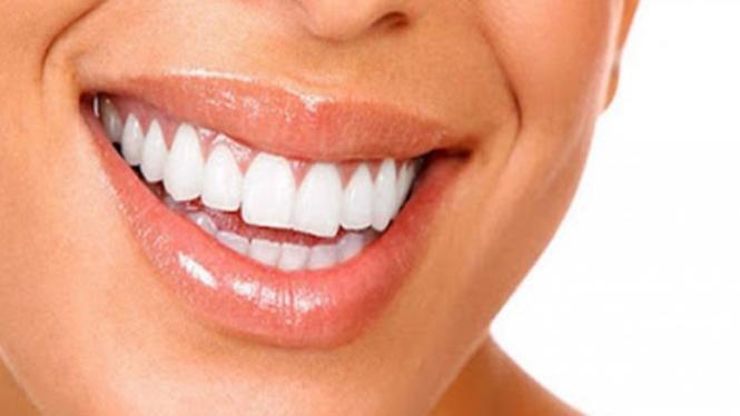 Ilustrasi mulut yang sehat.