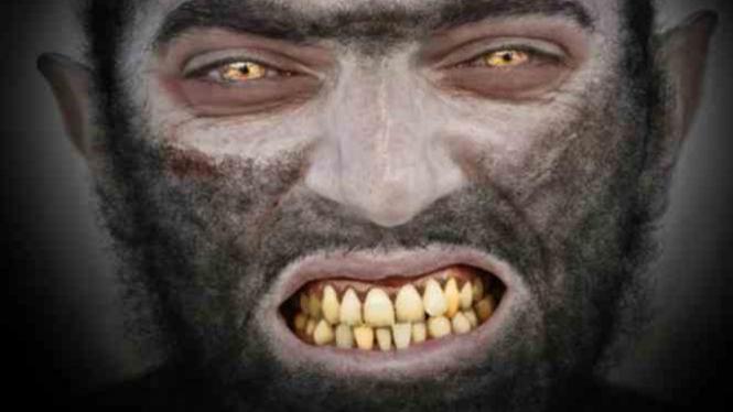 Ilustrasi Sindrom Werewolf.