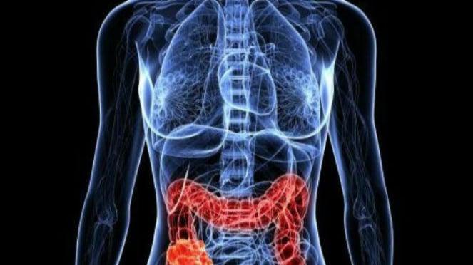 Makan Kurang Serat Bisa Picu Kanker Usus