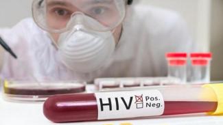 Ilustrasi HIV.