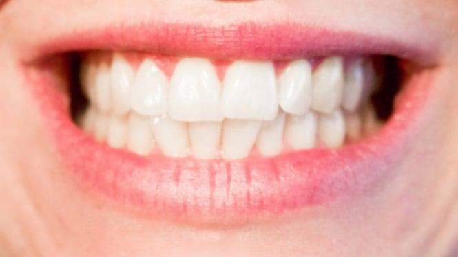 Begini Bedanya Pemutihan Gigi Dengan Veneer Dan Bleaching Viva